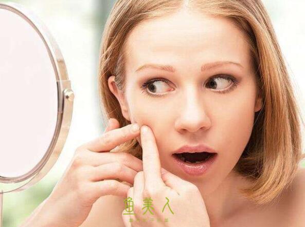 女性基本上每天都做的一件事那就是护理肌肤,可是在护理肌肤前一定要了解自己是什么类型的肌肤,这样才能在养肤护肤保养皮肤过程中起到事半功倍的效果。今日鱼美人小编就来告诉你各类型肌肤的优缺点以及怎样护理,希望对你养出水嫩光泽肌肤有帮助。  1.油性皮肤 油性皮肤优点: 皮实不容易敏感,对护肤品不怎么挑,不会感到干燥紧绷,也不容易晒伤、长皱纹。 缺点: 容易长痘痘、黑头,毛孔粗大,容易脱妆、浮粉 怎么护理: 清洁对油皮来说很重要,可以使用清洁力比较强的洗面奶,定期用清洁面膜。护肤品用比较清爽、油分少的,或者选有控